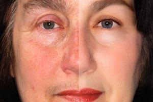arrêter de vieillir