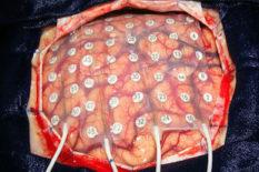 l'activité cérébrale en discours