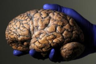 chirurgie du cerveau à distance