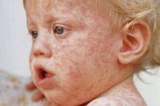 patients atteints de rougeole